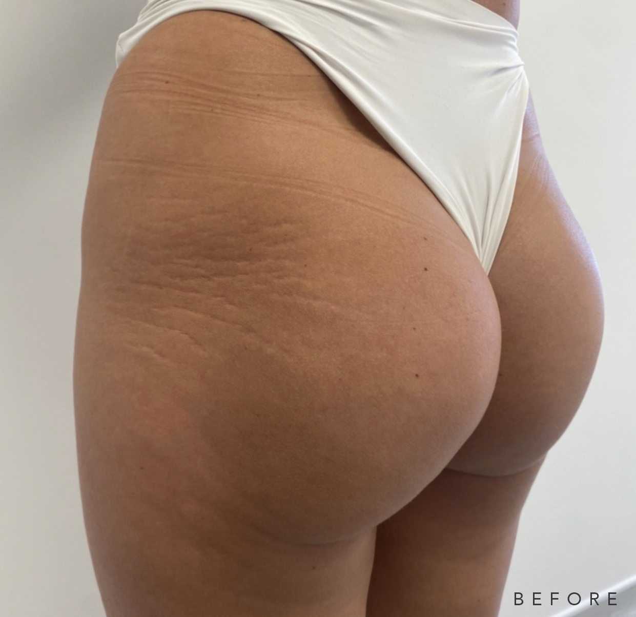 DD Brazilian Bum Lift